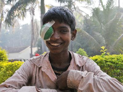 Lachender nepalesischer Junge mit Augenklappe nach seiner Augen-OP