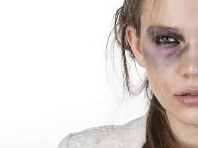 Frau mit einem blauen Auge